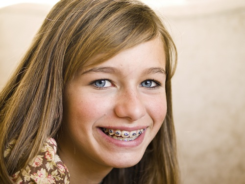 Blonde girl smiling wearing braces